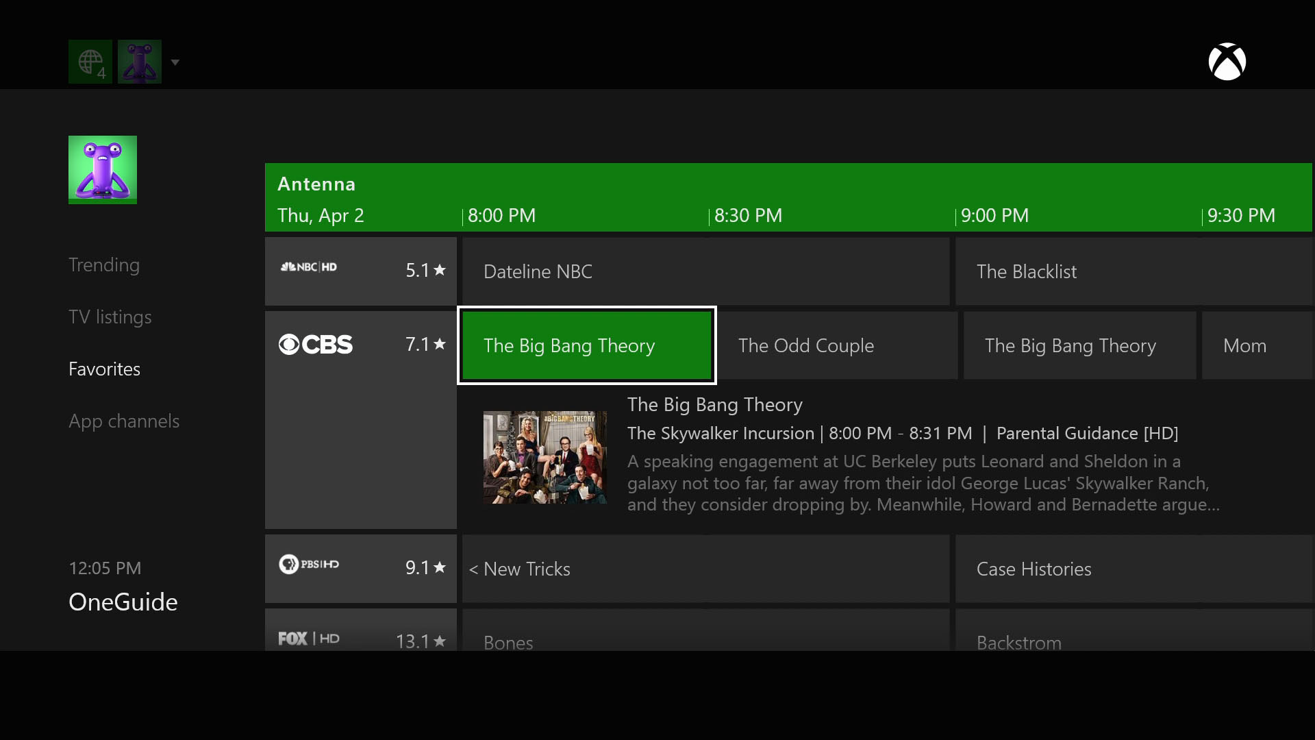 hauppauge | digital tv tuner for xbox one